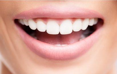 Implants dentaires, nos explications pour tout savoir